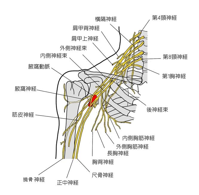 腕神経叢(わんしんけいそう)損傷の障害の症状と治療および予防法