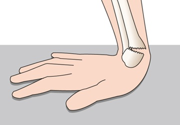 コレス骨折の症状と治療および予防法