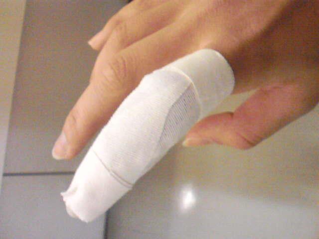 突き指の症状と治療および予防法