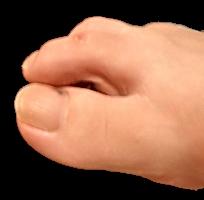 槌指(つちゆび) の症状と治療および予防法