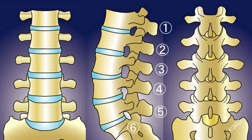 腰椎分離症の症状と治療および予防法