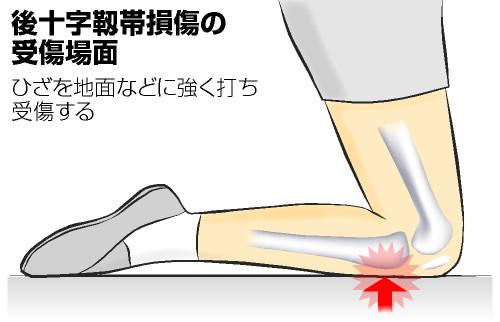 後十字靭帯損傷の症状と治療および予防法